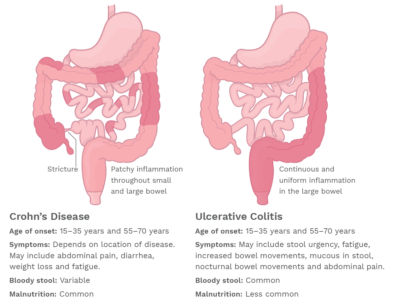 What should be the diet for colitis of the intestine
